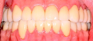 Healthy smile after full mouth reconstruction