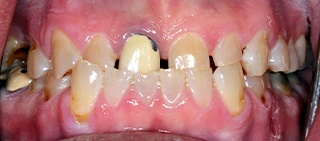 Severely decayed and damaged smile before full mouth recontsrtuction