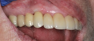Smile after dental implant tooth replacement