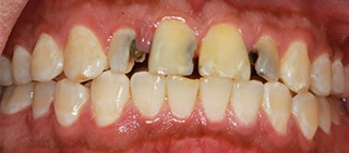 Front teeth with severe tooth decay
