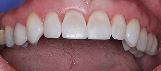 Beautiful smile after cosmetic dental bonding