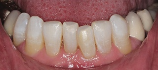 Gorgeous smile after conservative cosmetic dentistry treatment