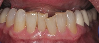 Misaligned worn and discolored teeth