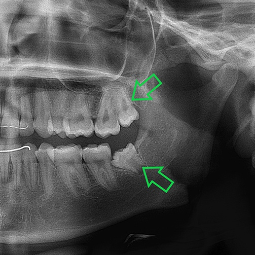 X-ray of impacted teeth