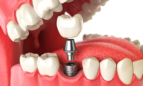 Animated dental implant supported dental crown placement