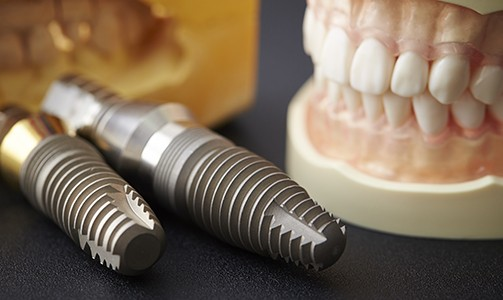 Two dental implant posts and smile model